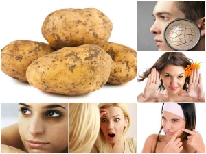 How To Use Potatoes For Acne Scars Pimple Spots