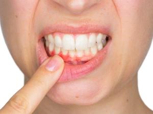 Swollen Gums Causes Symptoms Treatment Remedies