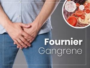 Fournier Gangrene Causes Symptoms Risk Factors Treatment
