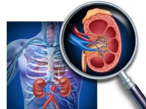 Risk Factors For Kidney Cancer