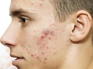Skin Problems Caused By Vitamin Deficiency And Unhealthy Die