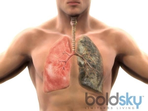 Pneumonia Causes Symptoms Treatment And Prevention