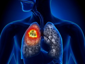 Foods That Can Fight Lung Inflammation