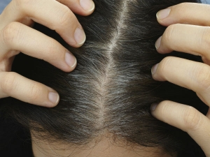 Premature White Hair In Children Causes Home Remedies
