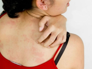 Strange Skin Problems That Could Be A Sign Of A Serious D