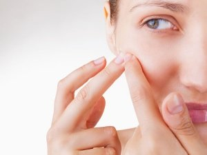 Do You Have Cystic Acne Problem Here Top 7 Natural Home Remedies