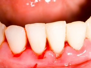 8 Best Natural Remedies To Treat Receding Gums