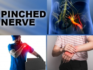 How To Fix A Pinched Nerve In The Neck Causes Symptoms