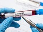 How Does A Coronavirus Antibody Home Test Kit Work