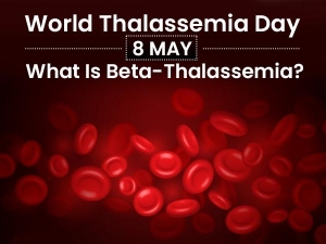 Thalassemia Signs Symptoms Types And Treatment
