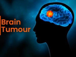 World Brain Tumour Day 2020 Types Symptoms And Treatment