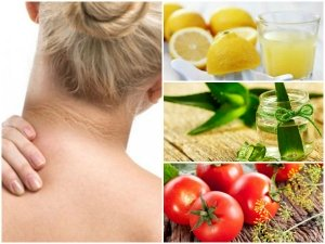 How To Get Rid Of Dark Neck Naturally