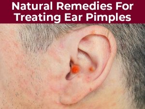 Effective Natural Remedies For Treating Ear Pimples