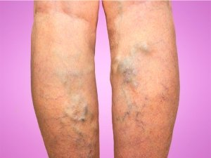 Varicose Veins Causes Symptoms Diagnosis And Treatment