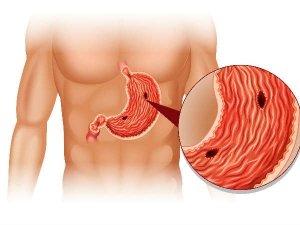 Covid 19 And Gastrointestinal Tumors