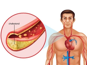 Interesting Facts About Cholesterol In Telugu