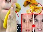 How To Use Banana For Healthy Glowing Skin