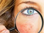 How To Get Rid Of Pimple Holes On Face