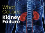 Things You Should Do To Prevent Kidney Failure