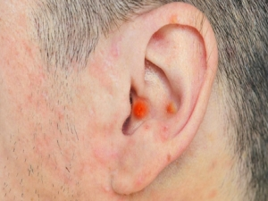 Home Remedies For Pimple In Ear