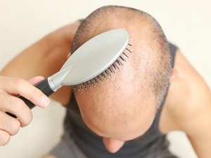 Granny Remedies To Cure Baldness