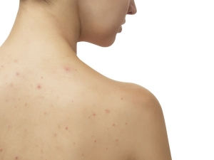 Ways To Get Rid Of Those Little Red Bumps On Your Arms
