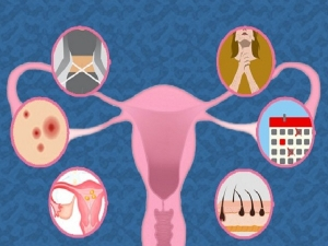 Polycystic Ovary Syndrome Pcos Causes Symptoms And Treatment