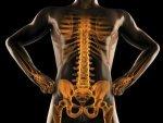 Foods That Heal Broken Bones Faster