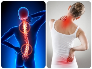 Ayurvedic Oils To Alleviate Back Pain Aches