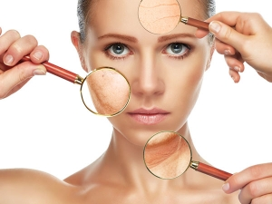 Natural Remedies To Remove Scars On Face In Telugu