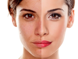 How To Exfoliate Your Face Based On Your Skin Type According To Dermatologists