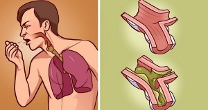 Foods That Cause Mucus Formation In Lungs