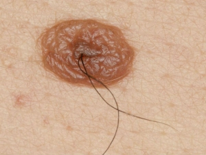 Ask A Doctor Are Hairy Moles Cancerous