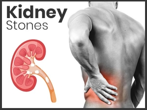 Foods To Avoid For Kidney Stones