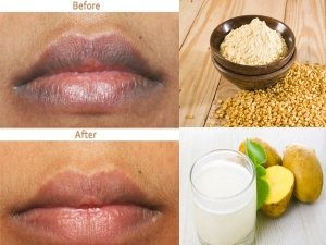 Ways To Get Rid Of Darkness Around The Mouth