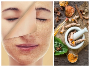 Ayurvedic Remedies To Get Rid Of Dead Skin Cells On Face