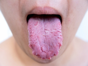 Bleeding Tongue Causes Treatments And Remedies In Telugu