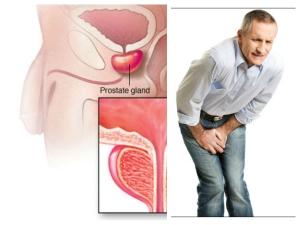 Foods To Boost Prostate Health In Telugu