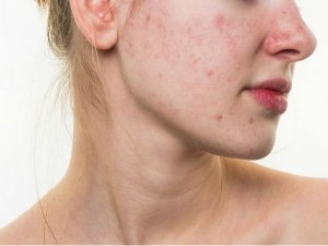 How To Get Rid Of Pimples On The Chin In Telugu