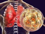How Different Conditions Affect Your Lungs