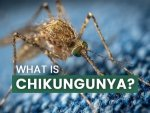 What Is Chikungunya Causes Symptoms Complications Treatments And Prevention In Telugu