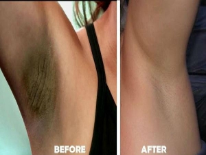 How To Use Potato Mix For Underarms Skin Whitening