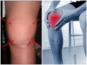 Foods You Should Consume If You Suffer From Arthritis And Joint Pain