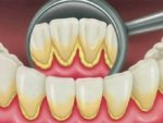 Home Remedies For Yellow Teeth In Telugu