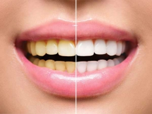 How To Remove Tea Stains From Teeth In Telugu