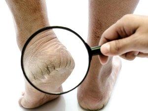 Remedies To Treat Cracked Heels In Telugu