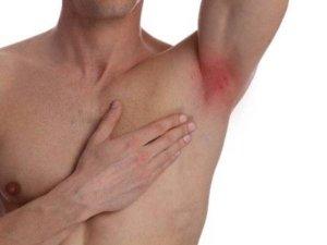 Home Remedies For Armpit Rash In Telugu