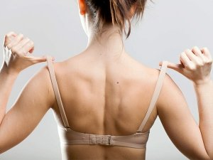 How To Get Rid Of Bra Strap Marks Naturally