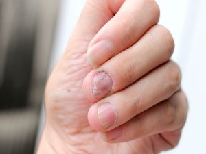 Covid Nails Your Fingernails Can Tell If You Have Had Coronavirus