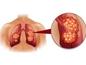 How To Improve Lung Health After Covid 19 In Telugu